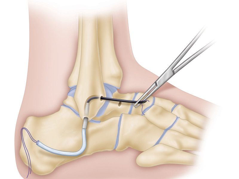 Ankle repair