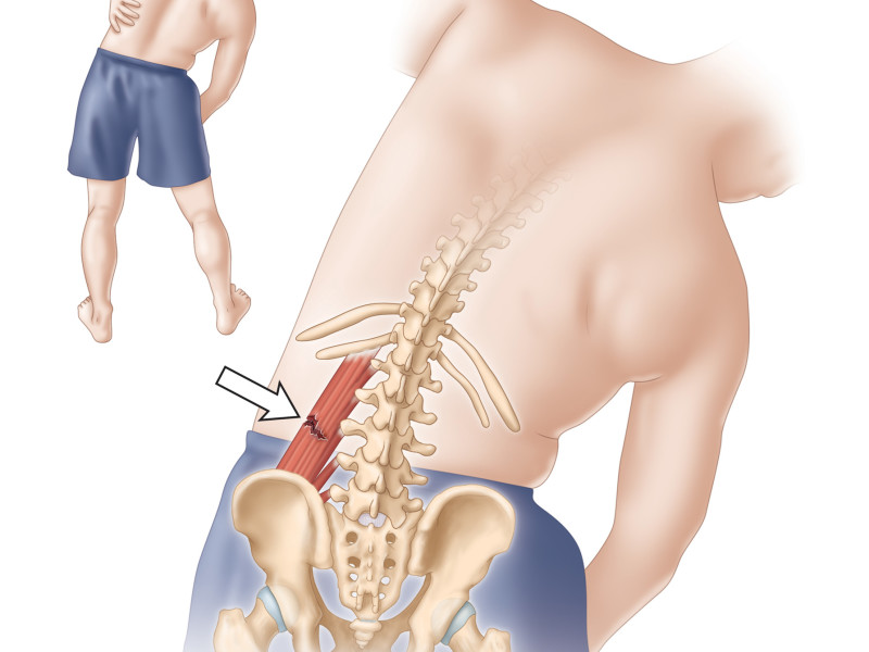 Back muscle injury / tear