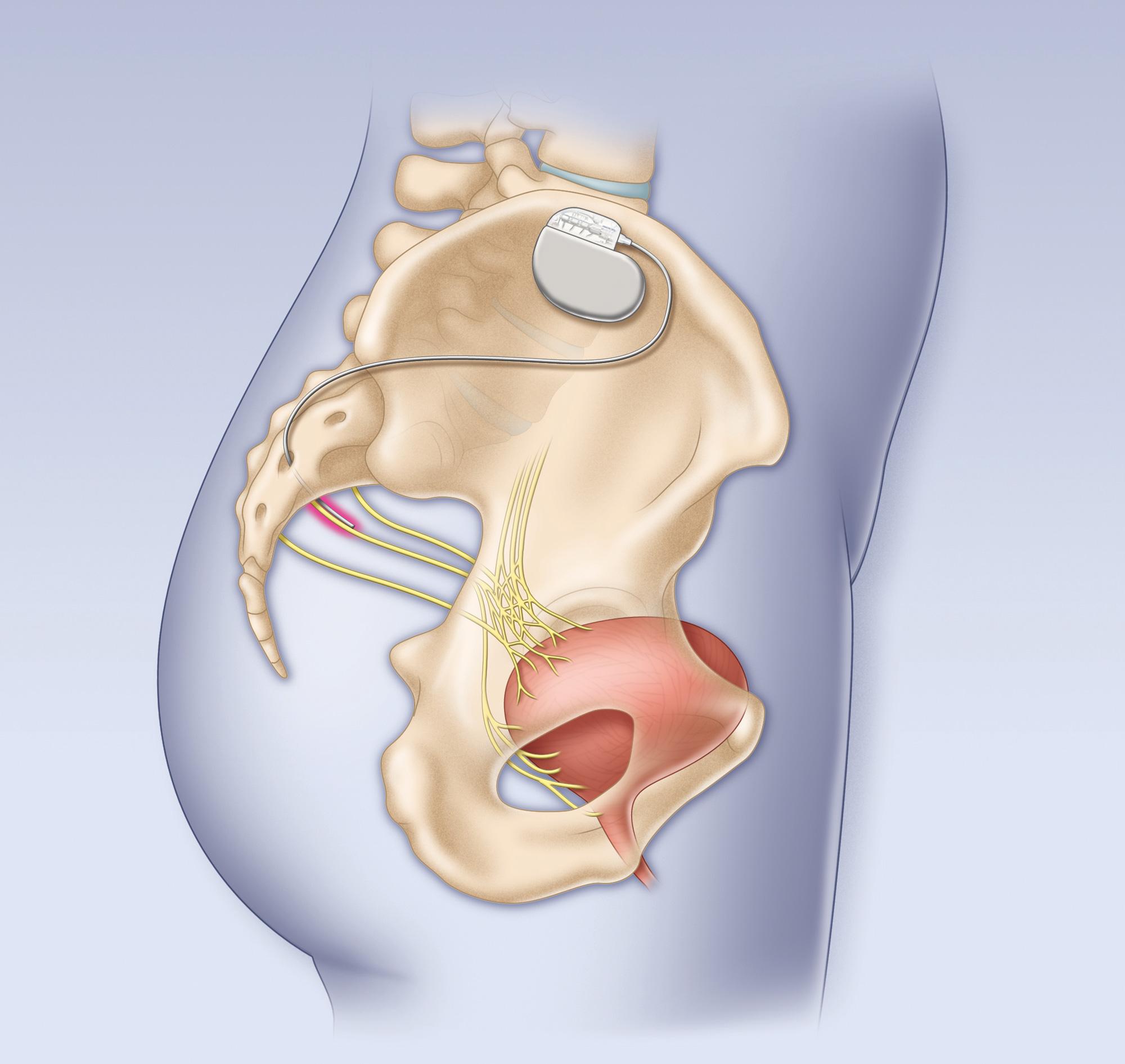 Bladder pacemaker