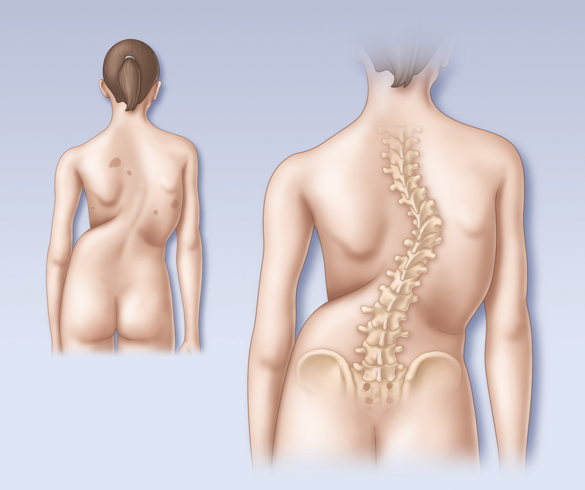 Scoliosis spine posterior view