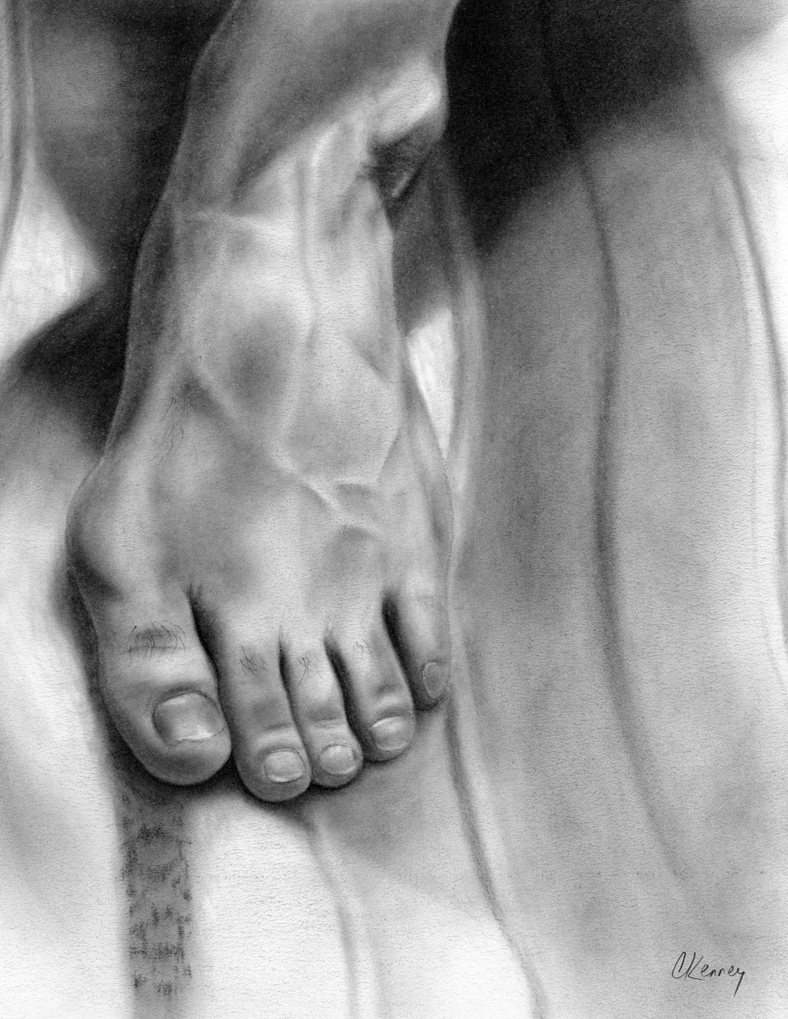 Hallux valgus foot illustration in carbon dust
