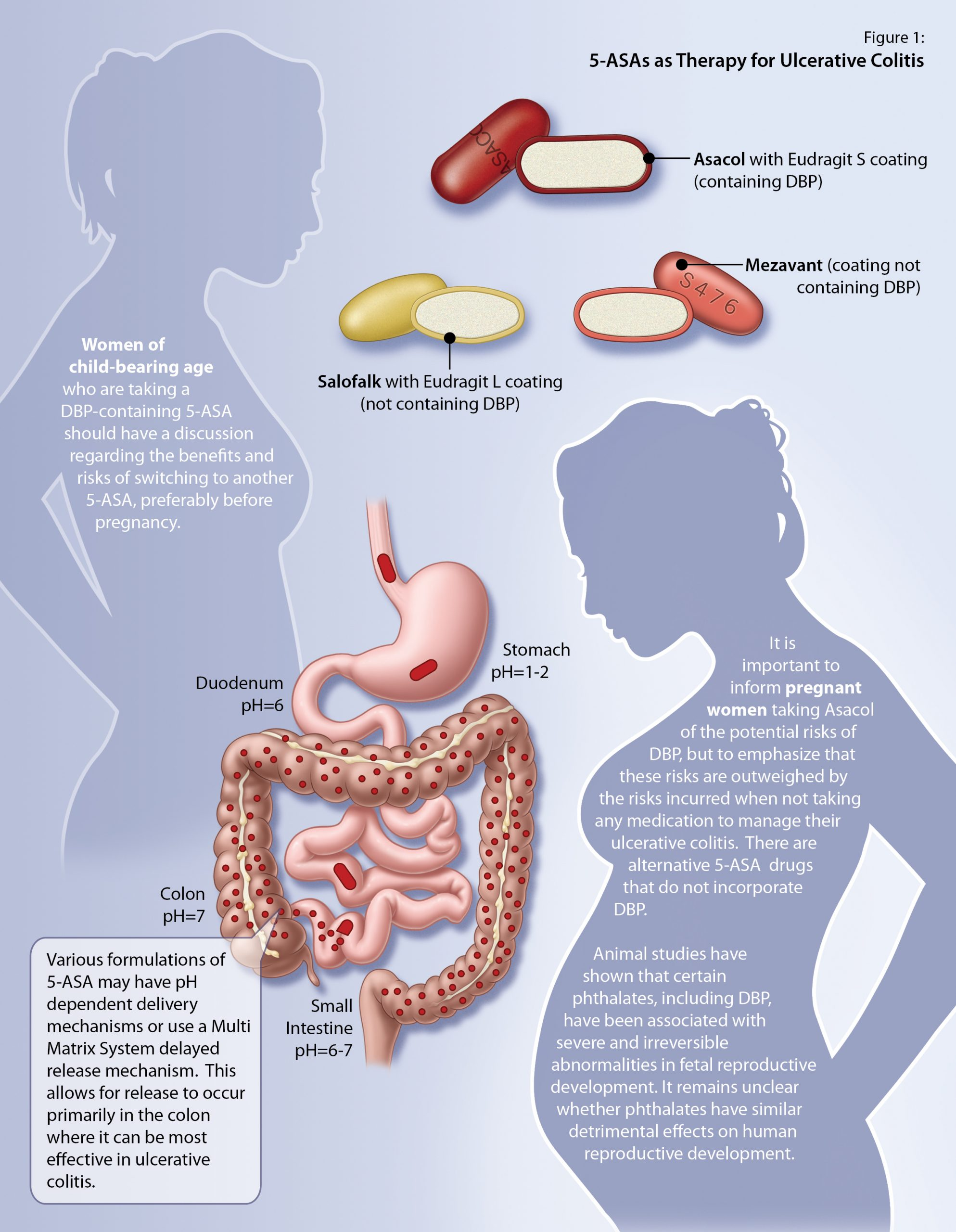5-ASAs as therapy for ulcerative colitis