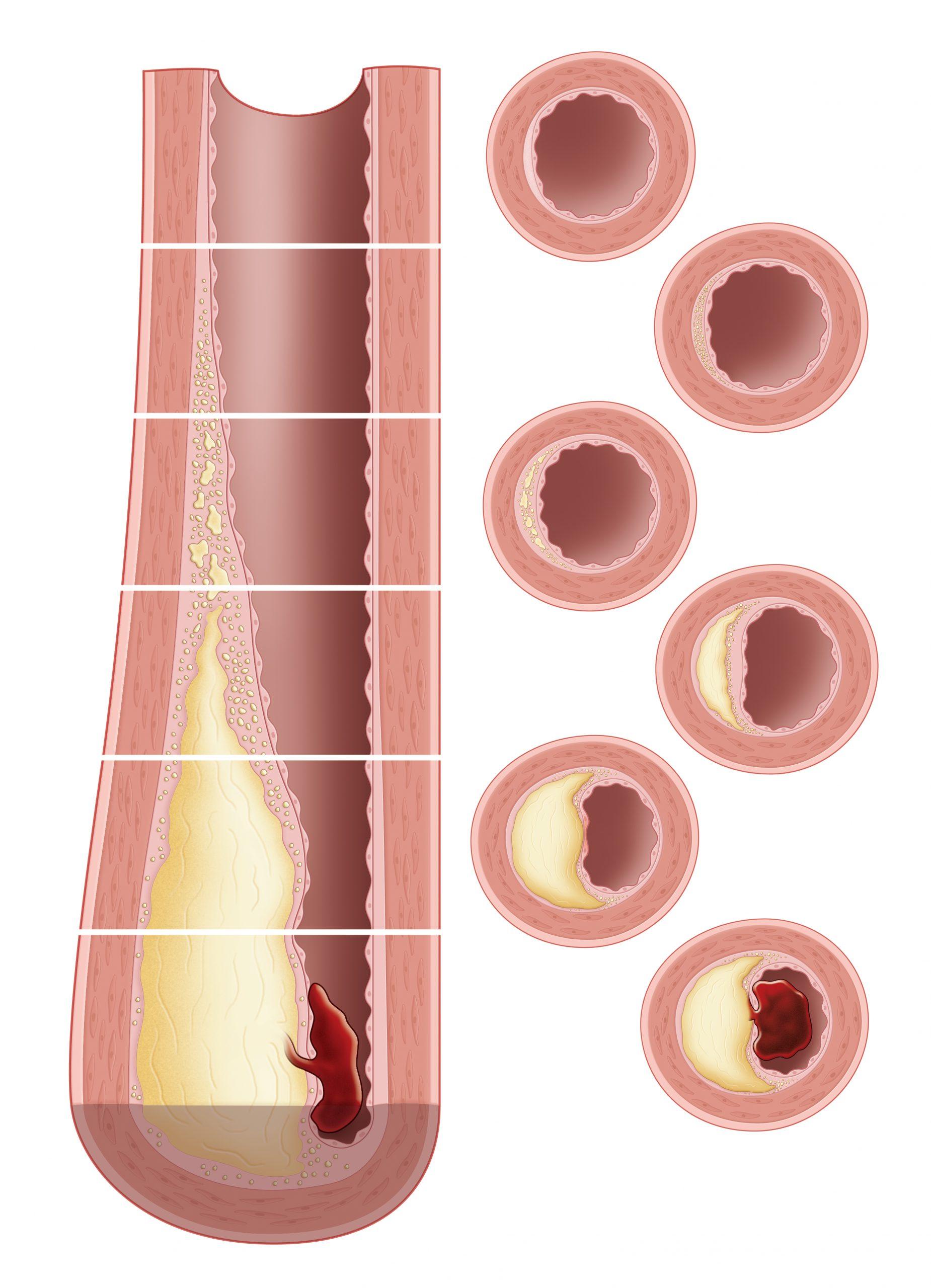 Progression of Atherosclerosis